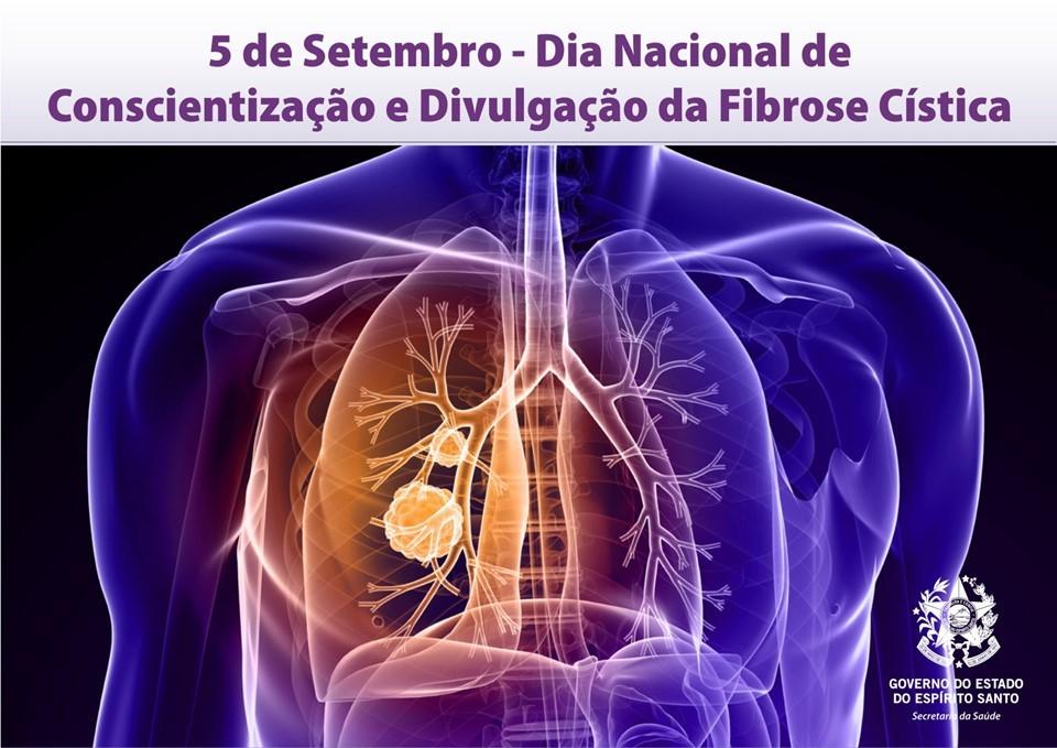 Setembro Roxo: A importância da conscientização sobre a fibrose cística